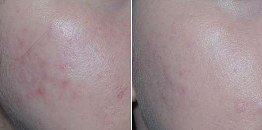 Haut nach 2-wöchigem Test (links) // nach 8-wöchigem Test (rechts)