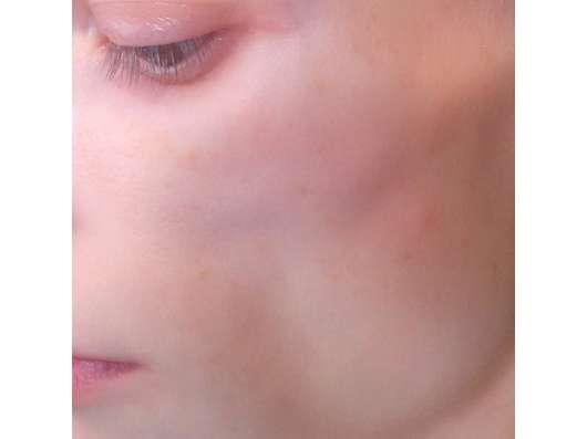 Haut zu Testbeginn