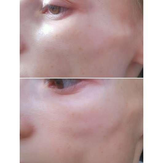 Haut nach 2-wöchigem Test (oben) // nach 8-wöchigem Test (unten)