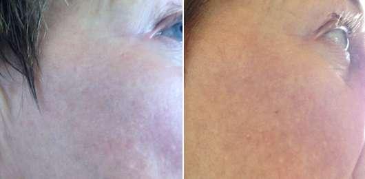 Haut zu Testbeginn (links) // nach 2-wöchigem Test (rechts)
