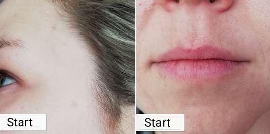 Zu Testbeginn: Pigmentflecken am Haaransatz (links) // Flächen mit Pigmentierung über und unter den Lippen (rechts)