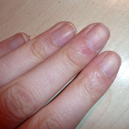 Misslyn Nail Polish Remover (Acetone Free) - Nägel ablackiert