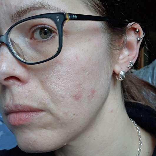 Haut nach 4-wöchigem Test - Neutrogena Skin Detox 2-in-1 Reinigung & Maske