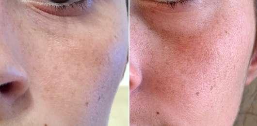 Haut zu Testbeginn (links) // nach 4-wöchigem Test (rechts) - Sisi and Joe Sisi's Intensiv Serum