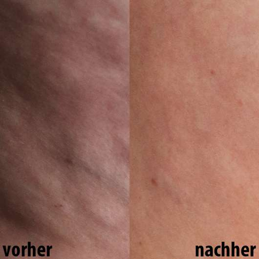 Haut vor dem Test (links) // nach 6-wöchigem Test (rechts) - skin689 Anti-Cellulite Creme