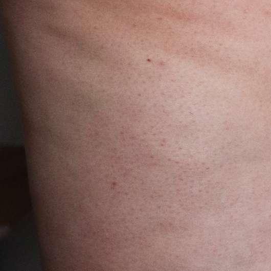 Haut zu Testbeginn - skin689 Anti-Cellulite Creme