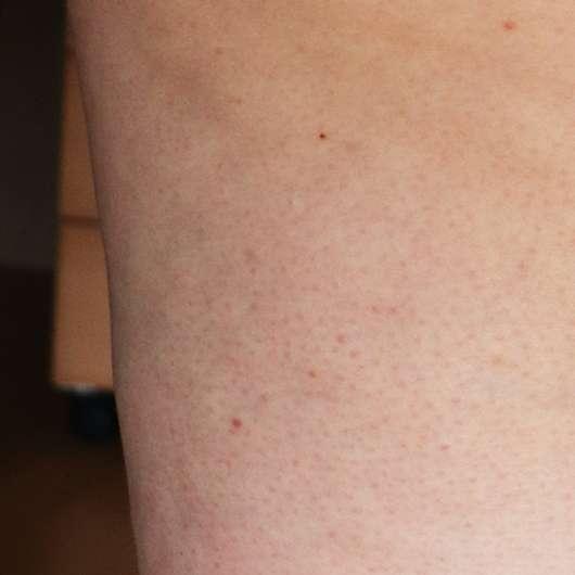 Haut nach 6-wöchigem Test - skin689 Anti-Cellulite Creme