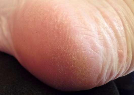 Hansaplast Anti Hornhaut Intensiv-Creme (mit 20% Urea) - Haut vor der Testphase