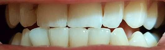 MARA EXPERT Aktivkohle Plus Sensitiv Zahncreme - Zähne nach 4 Wochen