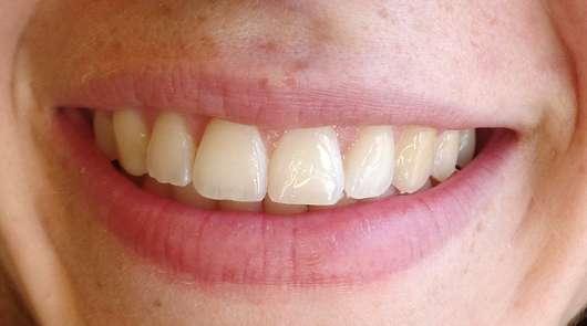 MARA EXPERT Interdentalbürsten (ISO-Größe: 0) - Zähne vor der Anwendung