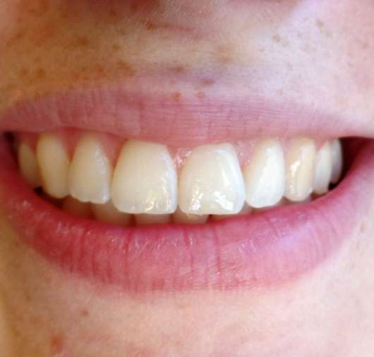 MARA EXPERT Interdentalbürsten (ISO-Größe: 0) - Zähne nach der Anwendung
