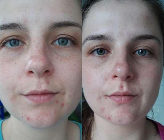 Links: Haut vor Testbeginn // Rechts: nach 5 Wochen regelmäßiger Anwendung