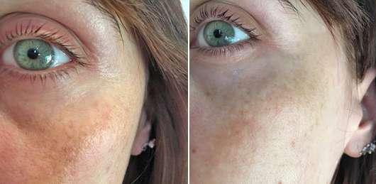 Haut vor dem Test (links) // nach dem 4-wöchigen Test (rechts) - alverde Perfekter Teint Schönheitsessenz Bio-Lotusblüte