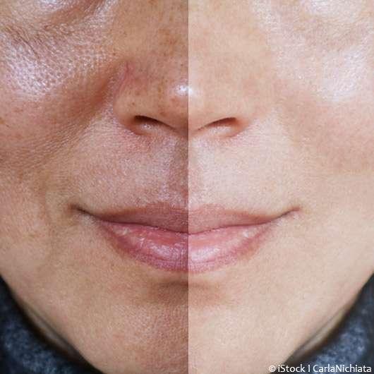Hauttyp – welchen habt ihr?