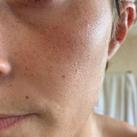 Pixi Vitamin-C Juice Cleanser - Hautbild vor der Anwendung