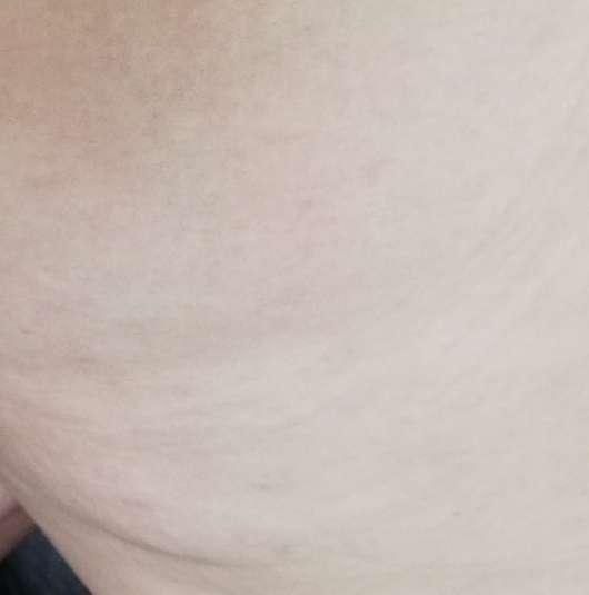 skin689 Anti-Cellulite Creme - Hautbild nach 6 Wochen Anwendung