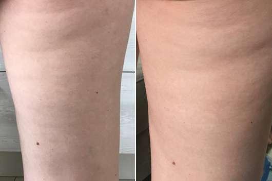 skin689 Anti-Cellulite Creme - Haut am Oberschenkel zu Testbeginn (links) // nach 8-wöchigem Test (rechts)