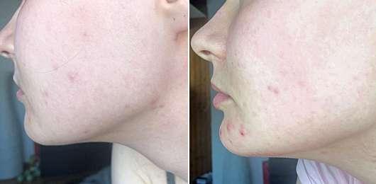 Skincerely Yours Make it even Serum - Haut zu Testbeginn // nach 4-wöchigem Test