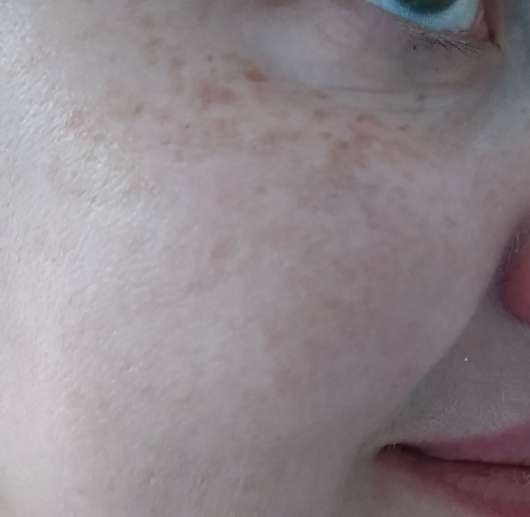Haut direkt nach dem Auftrag des Gertraud Gruber Hydro3 Hyaluron Serums