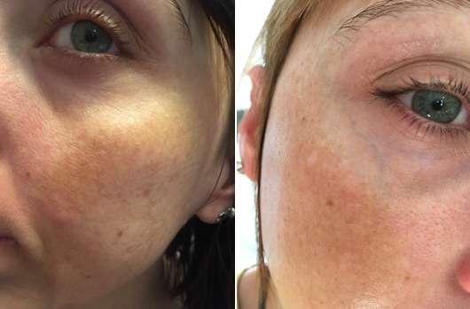 links: Haut zu Testbeginn // rechts: Haut nach 4-wöchigem Test - Yves Rocher Couleurs Nature Super Mat Zero Shine 12H Foundation, Farbe: Rosé 200