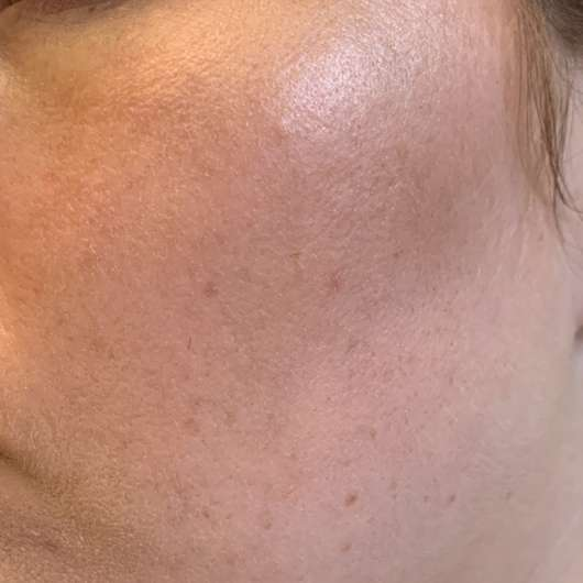 frei öl ReinigungsÖl & Maske - Hautbild nach der Anwendung