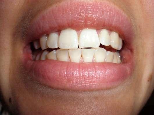 MARA EXPERT Aktivkohle Plus Sensitiv Zahncreme - Zähne vor der Testphase