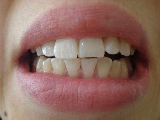 MARA EXPERT Aktivkohle Plus Sensitiv Zahncreme - Zähne nach 4-wöchiger Testphase