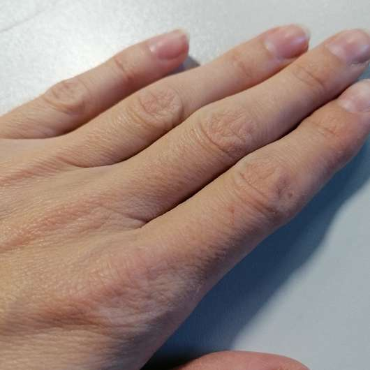 ALCINA Hyaluron 2.0 Hand Fluid - Trockene Haut vor der Anwendung