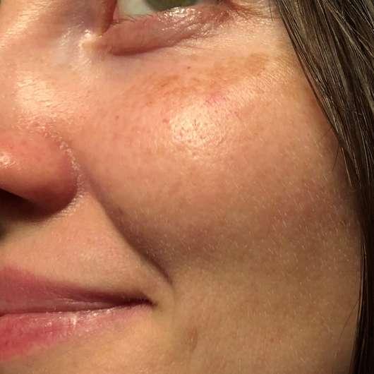 frei öl Hydrolipid FeuchtigkeitsCreme - Hautbild nach der Testphase