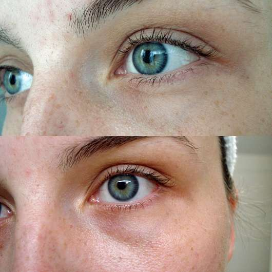 DERMAROLLER Set für Alterserscheinungen - Augenpartie VOR und NACH der Anwendung