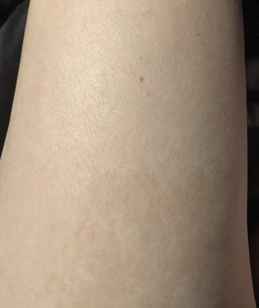 DERMAROLLER Anti-Cellulite Set - Haut nach 4 Wochen