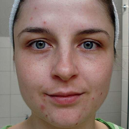 DERMAROLLER Set für Alterserscheinungen - Hautbild NACH der gesamten Testphase