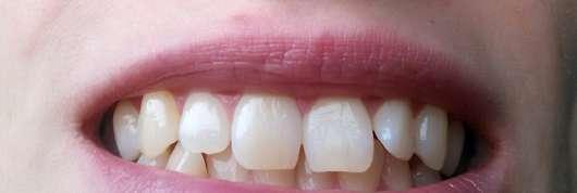 Mara Expert Aktivkohle Plus Sensitiv Zahncreme - Zähne nach der Anwendung