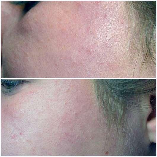 Origins Ginzing Ultra Hydrating Cream - Hautbild vor und nach der Anwendung