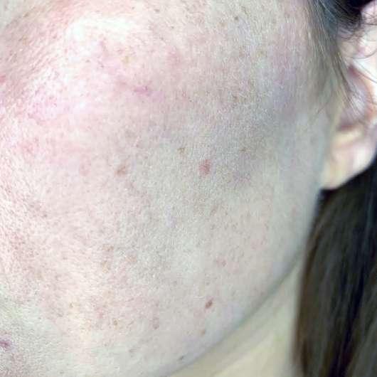 URANG True Rose Repair Essence - Hautbild vor der Anwendung