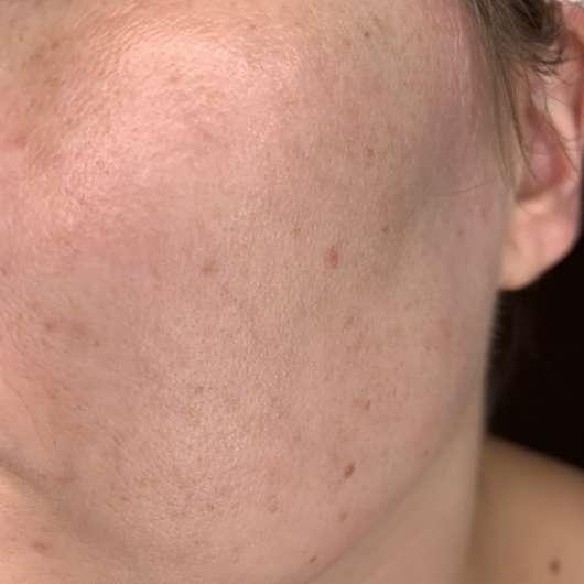 URANG True Rose Repair Essence - Hautbild nach der Anwendung
