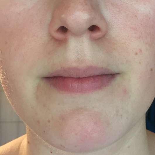 Yves Rocher Sebo Végétal Mattierende Gel-Creme - Hautbild vor der Testphase