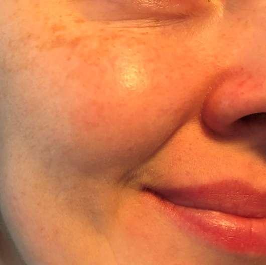 Haut direkt nach dem Auftrag des Clinique Smart Clinical MD Age Correction Duos