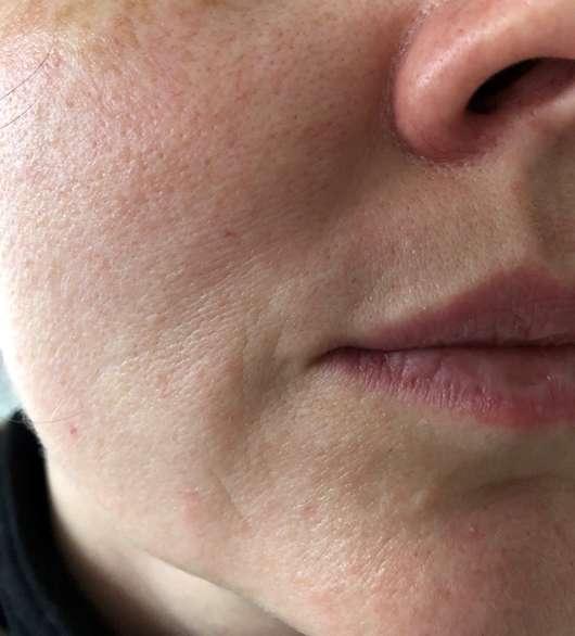 Gesichtshaut nach der Anwendung des La Roche-Posay Mizellen Reinigungsfluid Ultra