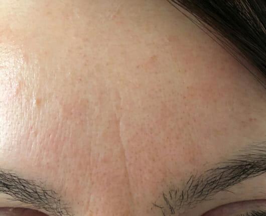 Haut nach 4-wöchigem Test