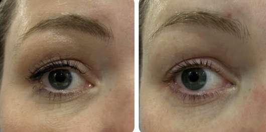 links: Auge vor der Anwendung // rechts: nach der Anwendung