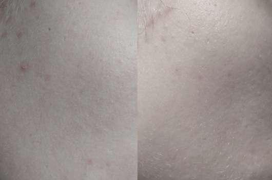 Haut vor Testbeginn (links) und nach vier Wochen (rechts)
