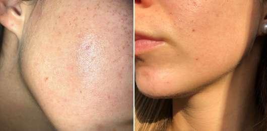 Links: Haut zu Testbeginn // rechts: Haut nach 4-wöchigem Test