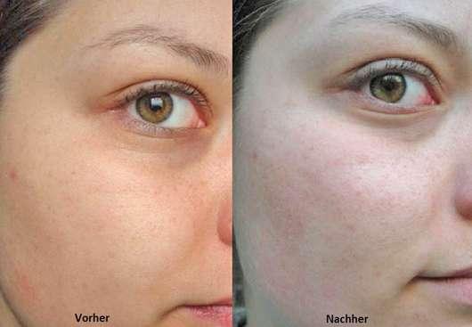 Mijo Naturkosmetik Balance Schwarze Seife - links: Haut zu Testbeginn // rechts: nach 4-wöchigem Test