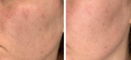 Anwendung mit Gesichtscreme vermischt: links vorher // rechts nachher