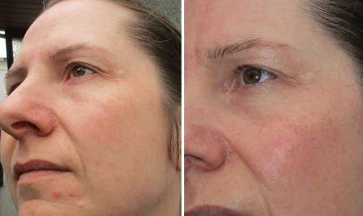 links: vor der Anwendung // rechts: nach der Anwendung - Dr. Scheller Argan & Amaranth Anti-Falten Tuchmaske