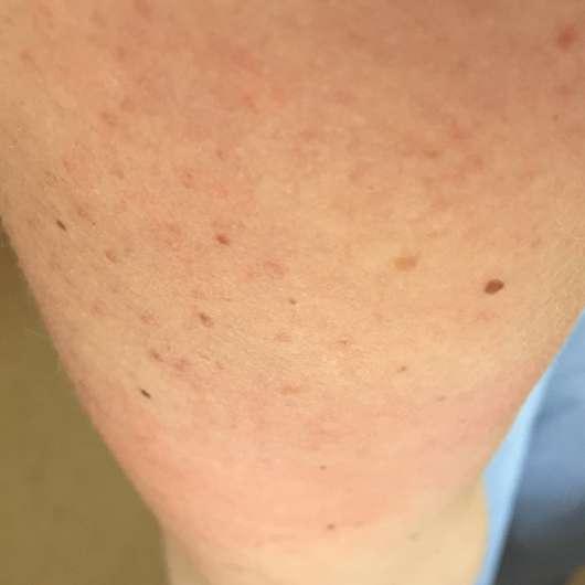 Haut zu Testbeginn - Eucerin pH5 Leichte Textur Lotion