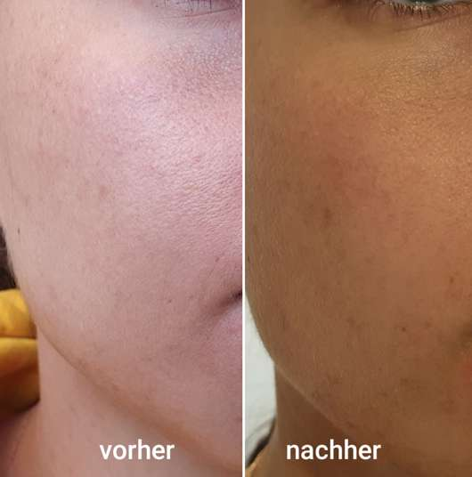 Gesicht vor/nach Anwendung der Dr. Scheller Argan & Amaranth Anti-Falten Tuchmaske