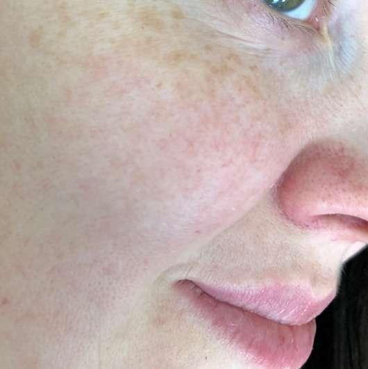 Haut vor der Anwendung der lavera Naturkosmetik Glow Tuchmaske