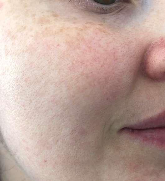 Haut nach der Anwendung der lavera Naturkosmetik Glow Tuchmaske